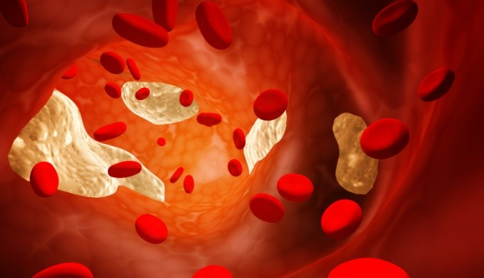HDL cholesterol may lose its protective effect during menopause.