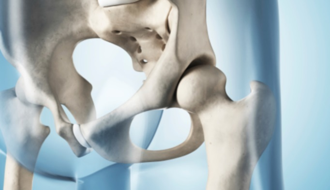 hip fracture treatment in older patients Hip fractures are among the common heath concerns for the elderly most hip fractures occur in individuals above 60 elderly people face a higher risk of slipping and falling, which often.