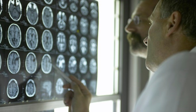 Type 2 Diabetes May Affect Brain Gray Matter Volume in Youths