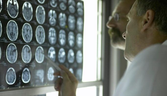 How Does Type 1 Diabetes Affect Children's Brains?