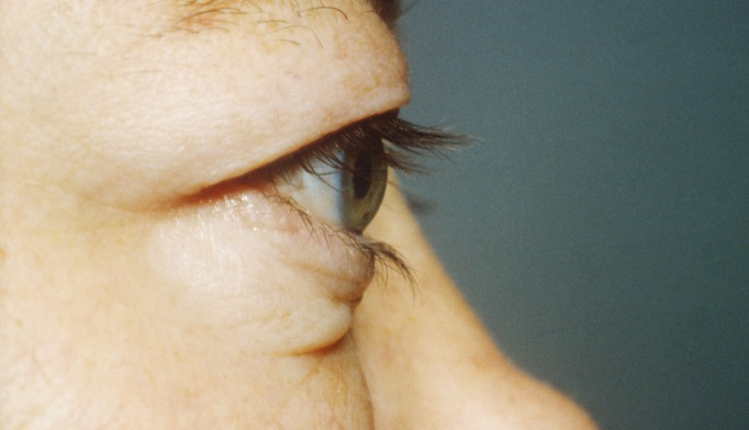 Ophthalmopathy Risk Decreased With Thyroidectomy, Statin Use