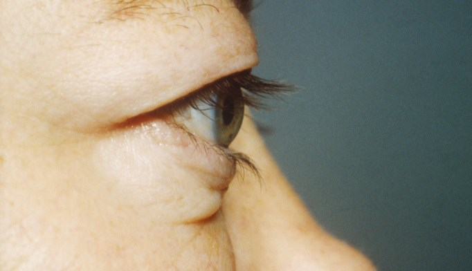 Aryl hydrocarbon receptor ligands may beneficial in thyroid eye disease.