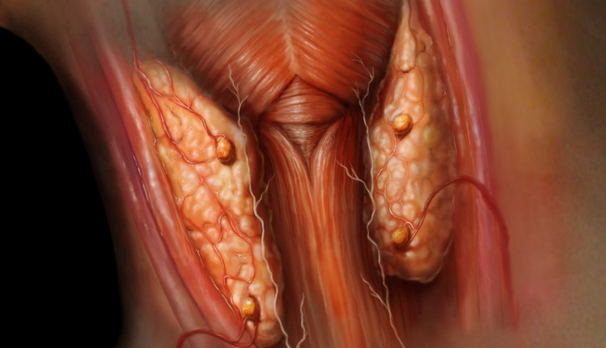 Parathyroidectomy Improves Quality of Life in Primary ...