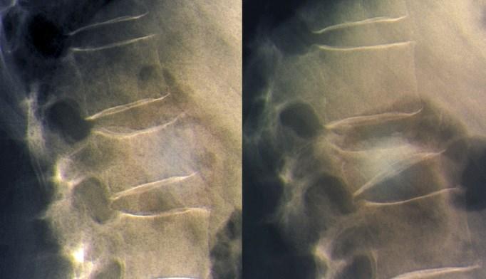 FRAME: Romosozumab Decreases Vertebral Fracture Risk in Osteoporosis
