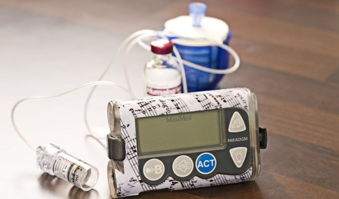 A Call for Improved Surveillance of Insulin Pump Therapy