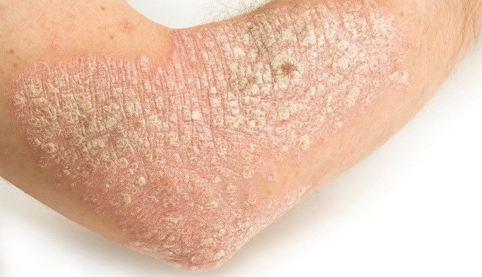 Psoriasis Risk No Lower With Statins
