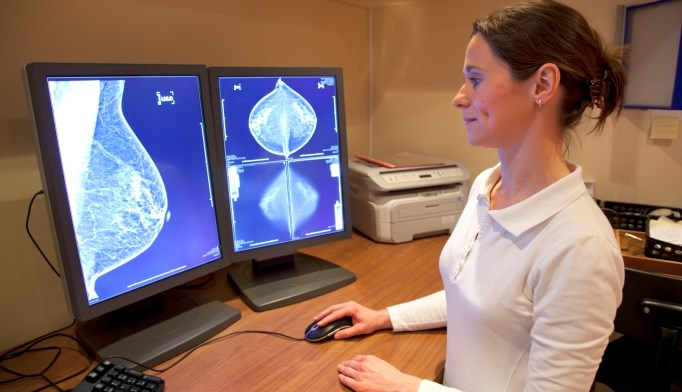 Adjuvant Endocrine Therapy for Breast Cancer Associated With Increased Symptom Burden