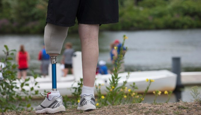 Mortality Risk Higher With Lower Extremity Amputation in Diabetes