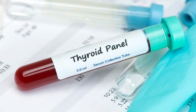 Levels of thyroid hormones may be associated with prevalence of type 2 diabetes.