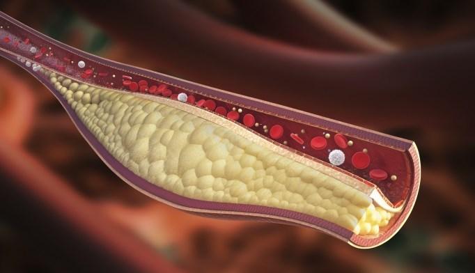 Depressive Symptoms Associated With Coronary Artery Calcium