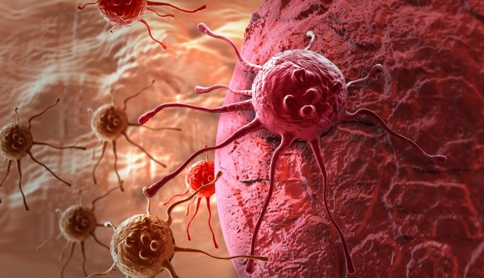 Risk for cancer may depend on the duration of type 1 diabetes.