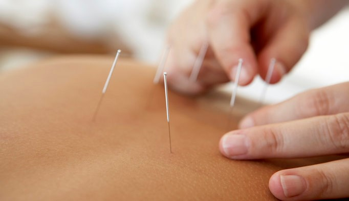Acupuncture may reduce frequency of vasomotor symptoms.