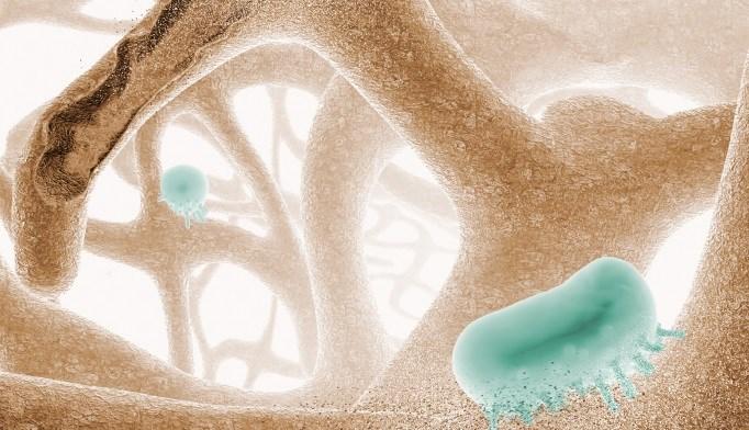 Bone Density Linked to Vascular Calcification in ESRD
