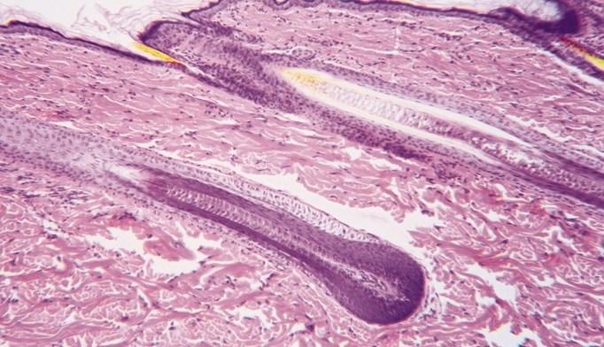 Vitamin D Receptor Levels Lower in Alopecia