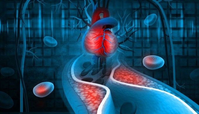 Combination Ezetimibe/Rosuvastatin Beats Rosuvastatin Alone in Hypercholesterolemia