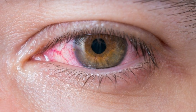 Diabetes Tied to Incidence of Conjuctivitis