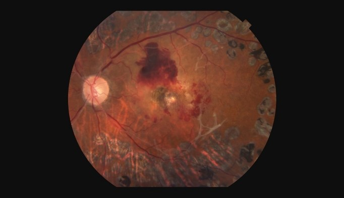 Proliferative diabetic retinopathy showed less worsening when treated with ranibizumab. <i>Image credit: Paul Whitten/Science Source</i>