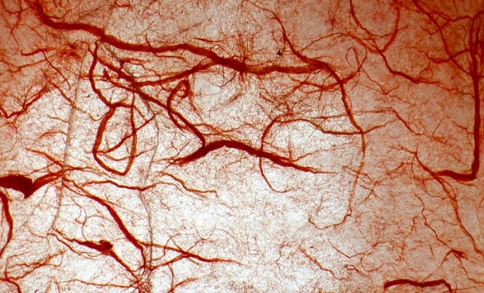 It appears that neuropathy is not a factor in impairing microvascular endothelium-dependent vasodilation.