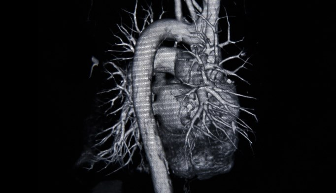Dietary Sodium-to-Potassium Ratio Linked to Cardiovascular Disease Risk