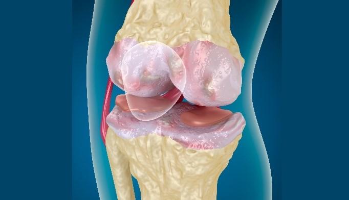 Does Osteoarthritis Diagnosis Affect Rheumatoid Arthritis Disease Activity Scores?