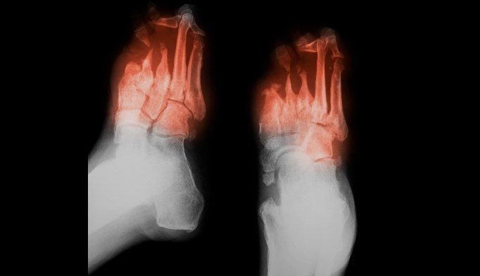 Nerve Decompression Potentially Beneficial  in Painful Diabetic Neuropathy