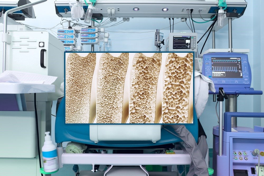 Critical illness was found to be associated with sustained decreases in bone mineral density.