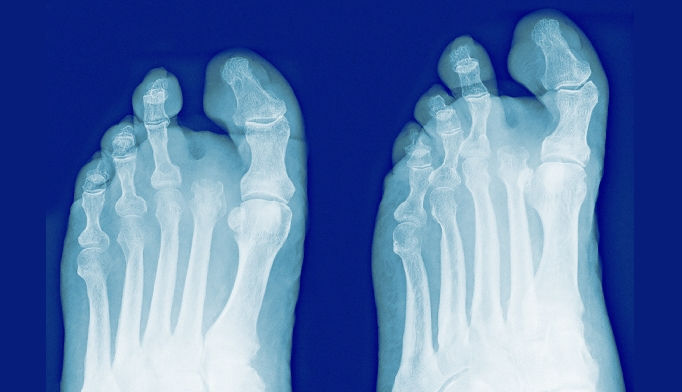 Diabetes drug raises risk of foot and leg amputation