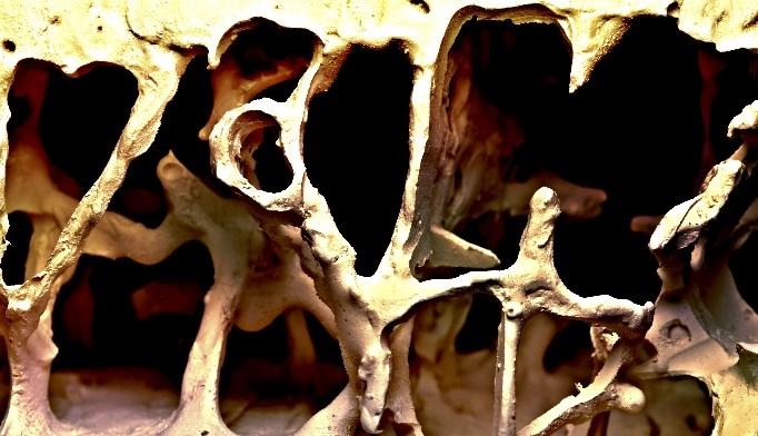 Osteoporosis Treatment Approaches in Women vs Men