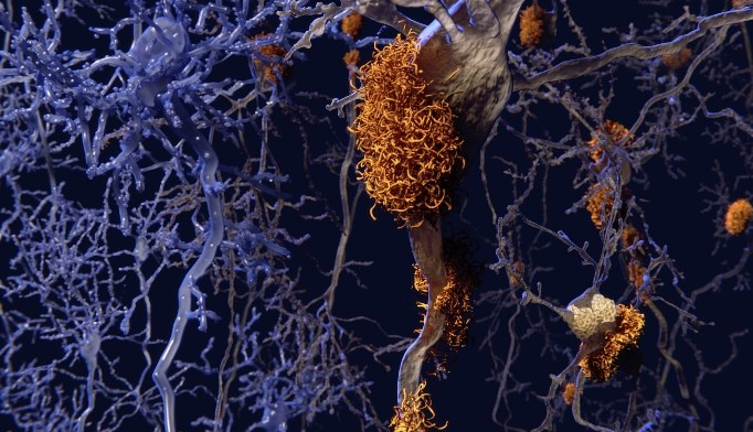 Low Body Mass Index and Alzheimer Disease: Is There a Link?
