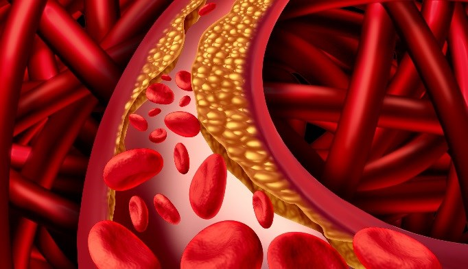 Thyroid Dysfunction Not a Risk Factor for Carotid Plaque Development