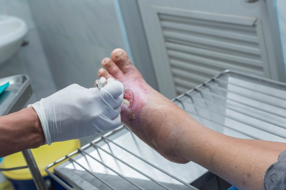 Efficacy of Hyperbaric Oxygen Therapy in Diabetic Foot Ulcers