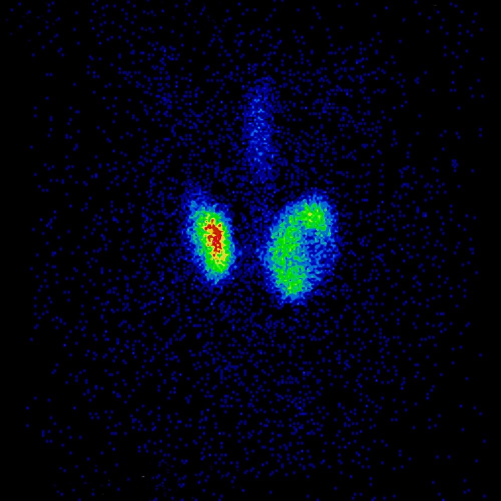 Participants diagnosed with medullary thyroid cancer were diagnosed with early-stage disease. <i> Image credit: ISM / Dr Aubène LEGER</i>