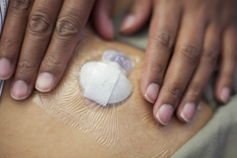 Patients using professional continuous glucose monitoring at least once per year experienced a $3376 difference in total diabetes-related costs. <i>Image credit: SPL/Science Source.</i>
