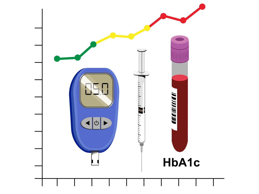 Novel Adaptive Artificial Pancreas Improves HbA1c and Reduces Hypoglycemia