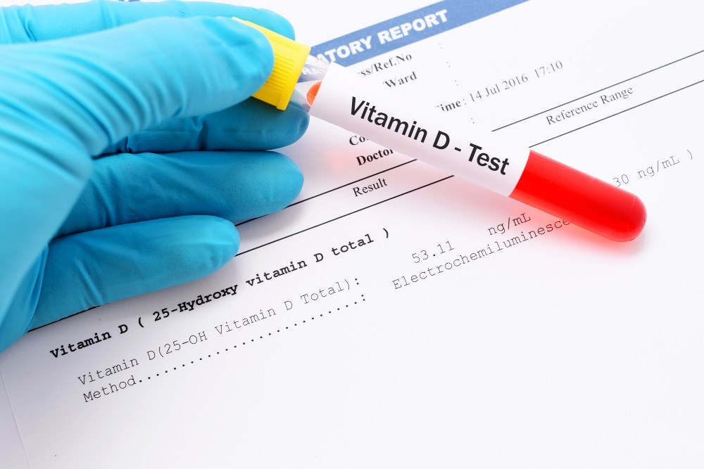 Does Serum Vitamin D in Pregnancy Alter T1D Development Risk in Children?
