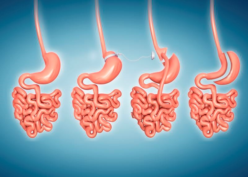 Gastric Bypass Blunts B-Cell Sensitivity During Glycemia