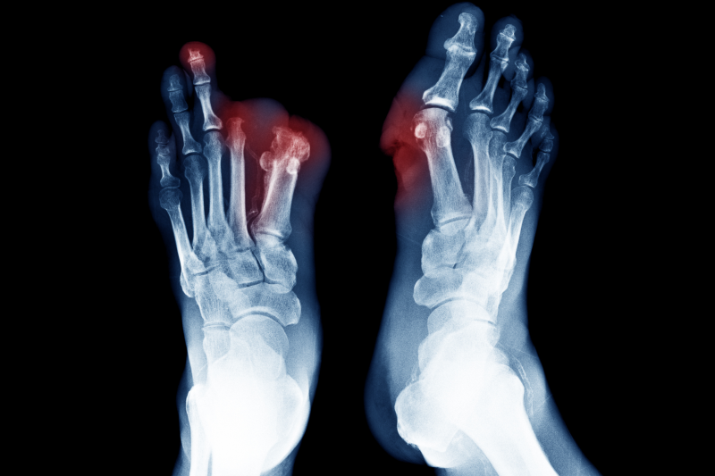 FDA Approves First Shock Wave Device for Treating Diabetic Foot Ulcers