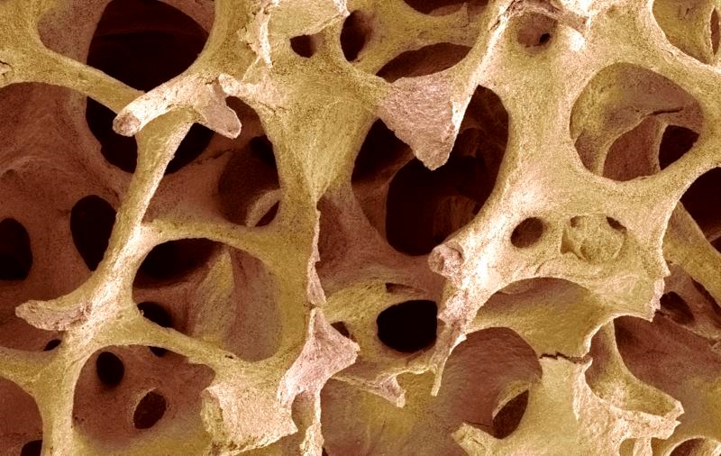 Trabecular Bone Morphology Changes May Predict Bone Strength in Girls