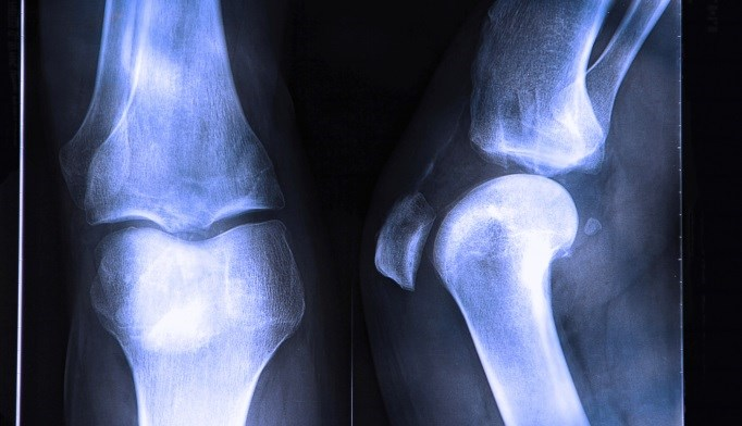 Look AHEAD: Weight Loss for Diabetes Tied to Bone Loss in Men
