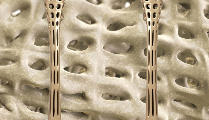 VIDEO: Novel Approaches for the Treatment of Osteoporosis