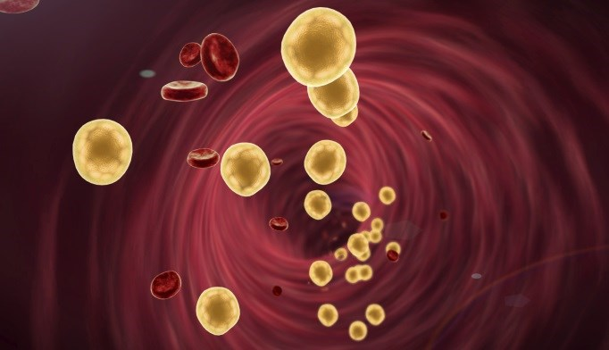 Alirocumab Effective in Hypercholesterolemia Trials