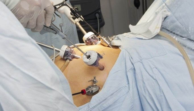 Gastric Bypass May Decrease Future Healthcare Costs