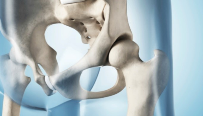 Researchers found that AD was a significant enough risk factor for hip fracture that preventive interventions should be implemented.