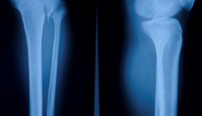 Combination Denosumab, Teriparatide Beneficial for Bone Density
