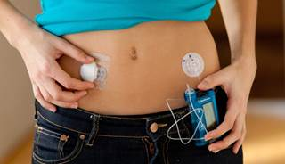 insulin pump therapy had durable effect in type 2 diabetes