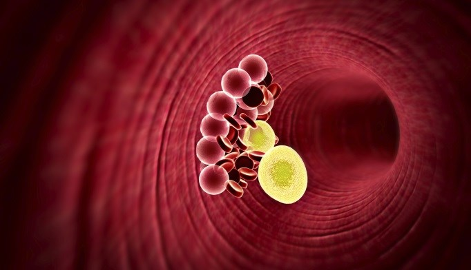 Alirocumab May Benefit Patients with Statin Intolerance