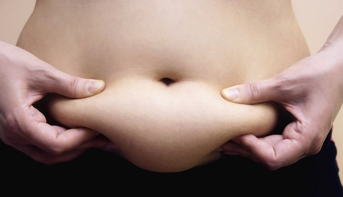 Being Overweight in Youth May Increase Colorectal Cancer Risk in Women