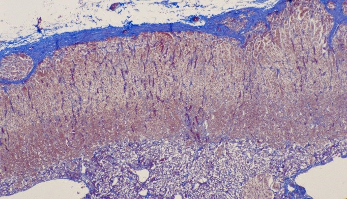 Cushing's Syndrome Etiology Affects Adrenal Function Recovery