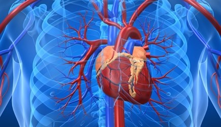 ELIXA: No Cardiac Risks, Benefits With Lixisenatide