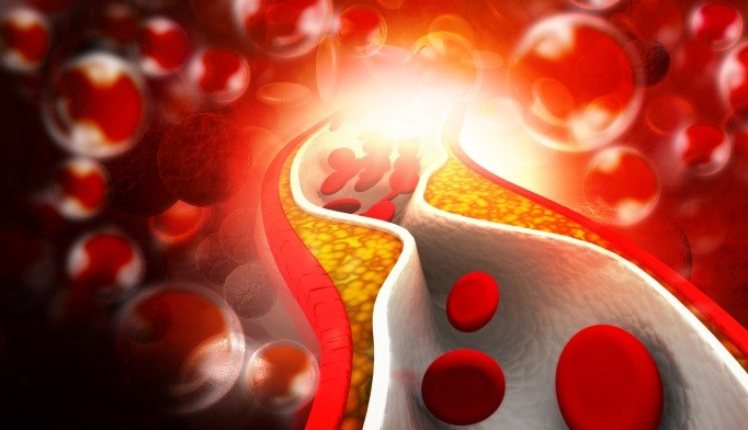 Familial Hypercholesterolemia Tied to Significantly Increased CVD Risk